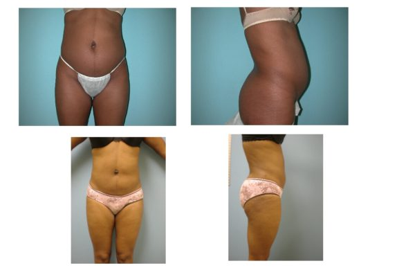 liposuction abdomen and flanks before after VA