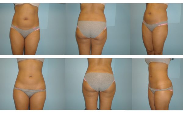 liposuction abdomen and flanks before after
