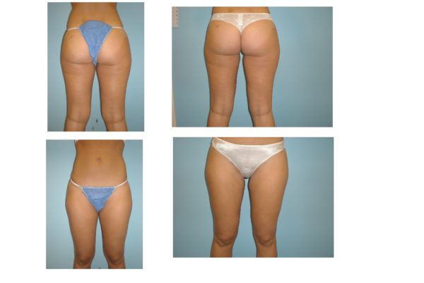 Inner thigh lipo surgery before and after VA
