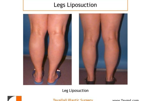 Leg liposuction before after surgery result