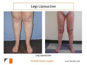 leg liposuction results in VA