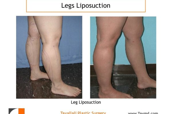 leg liposuction before after result