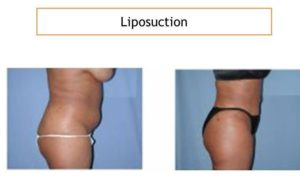 Liposuction abdomen and hips before after