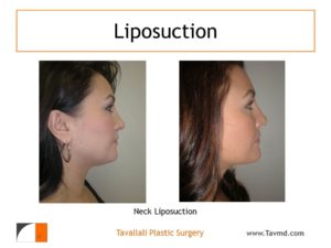 profile of woman before after neck liposuction Fairfax county VA