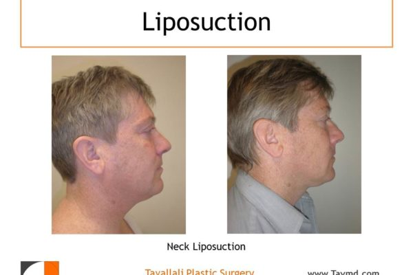 Side view of man before after neck liposuction Fairfax county VA