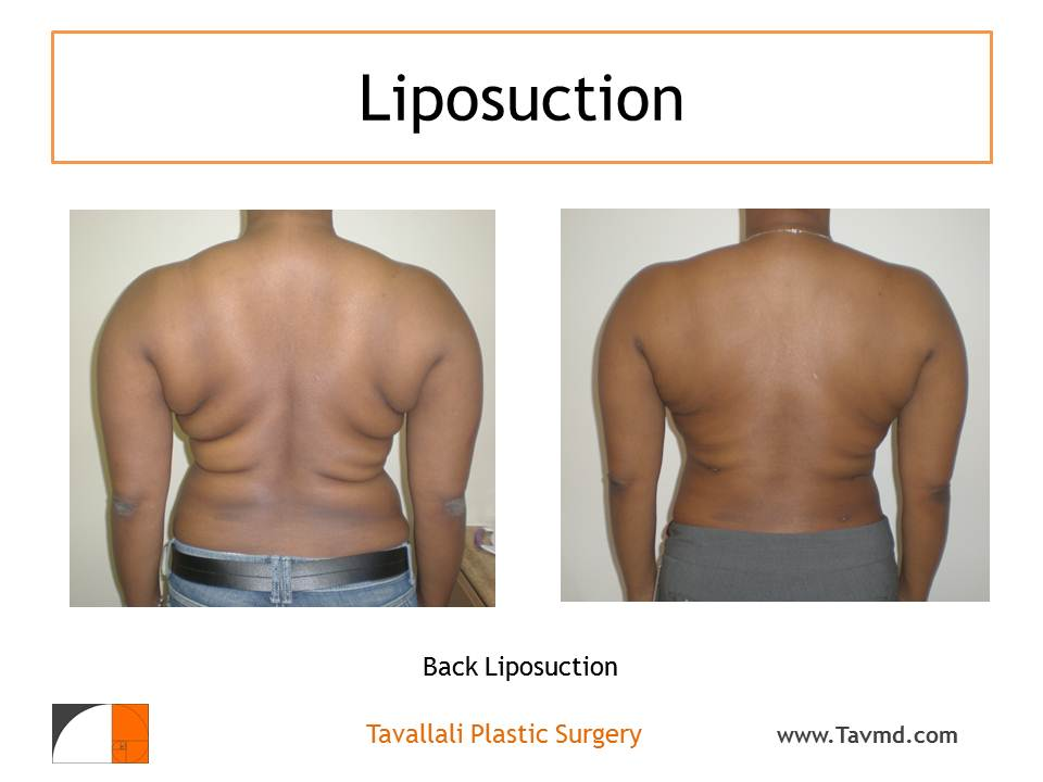 Liposuction garments
