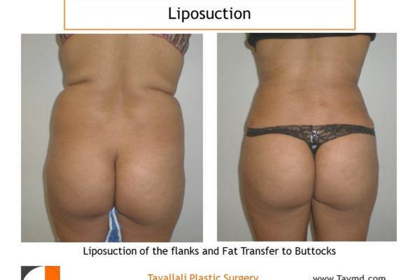 BBL Brazilian buttock lift liposuction fat transfer