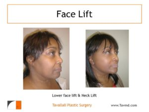 Lower face lift and Neck lift result