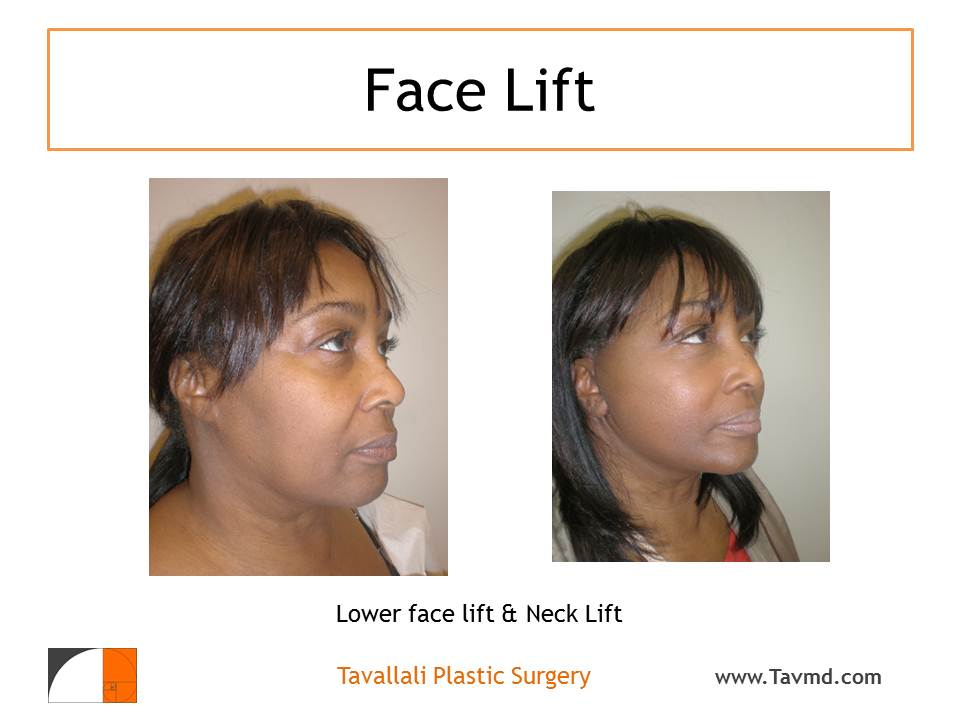 Mini Facelift, Major Results