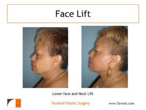 Woman in profile after and before lower face lift and neck lift