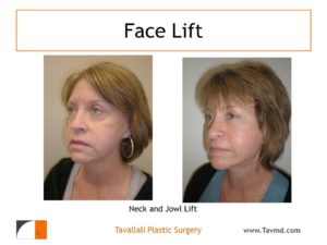 Neck and Jowl lift before after