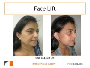 Neck and Jowl lift surgery of owman
