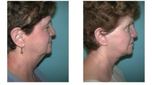 Neck lift surgery in woman