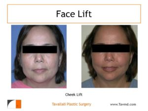 Cheek lift results of woman