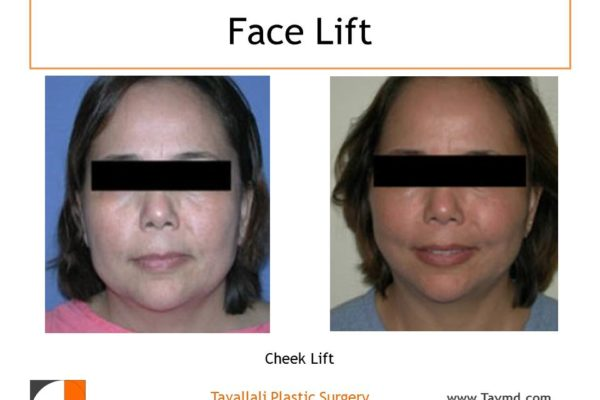 Cheek lift results of woman