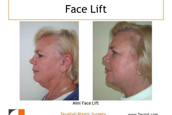 Mini facelift surgery profile