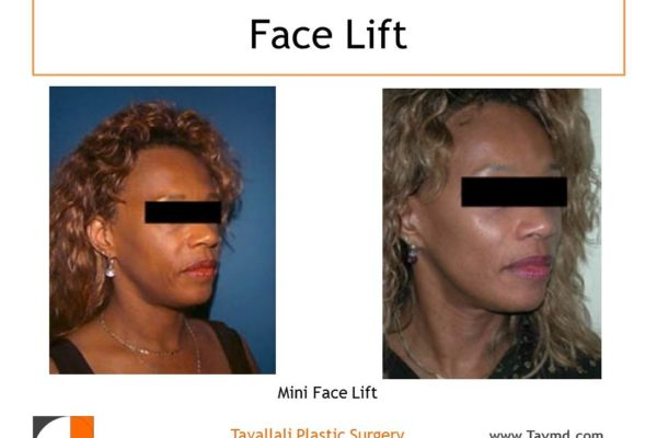 Mini facelift surgery results before and after