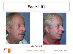 Man after and before mini facelift surgery