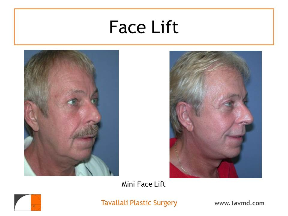 Facelift Surgery: A Modern Approach