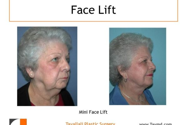Mini facelift before after of woman with jowls