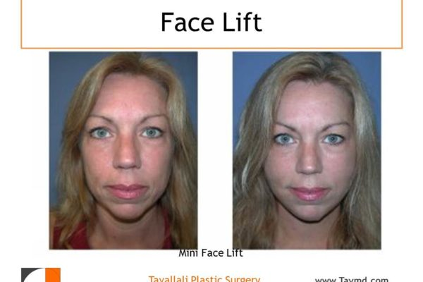 Mini facelift result on a young woman