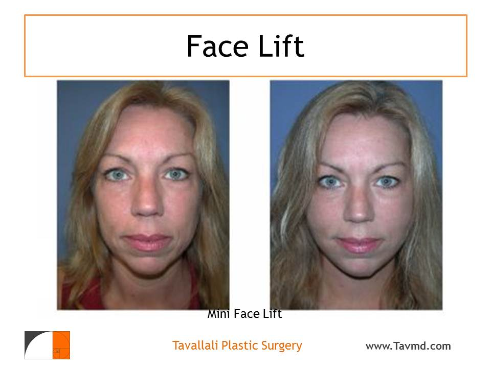 Cosmetic Surgery in the Older Patient