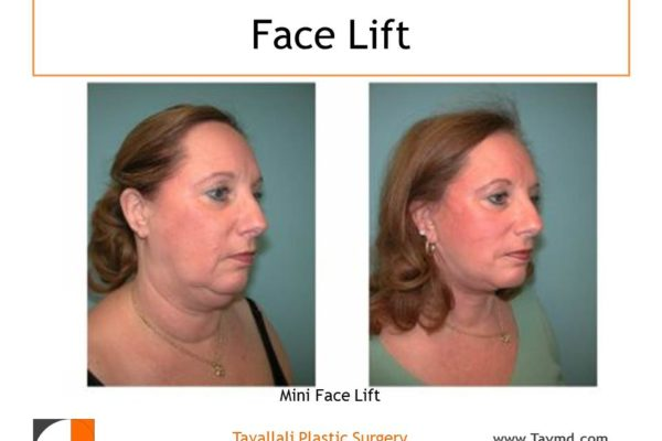 Woman with mini Face lift