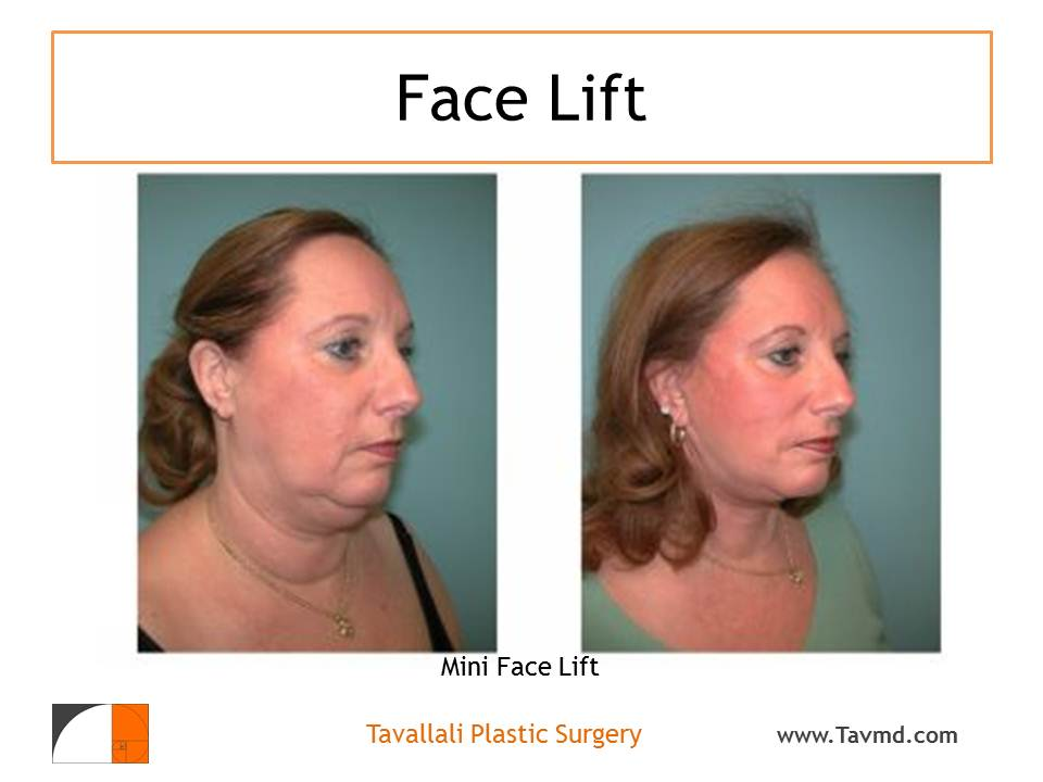 Fat Injections in the Face