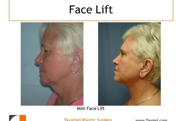 Neck lift before after surgery