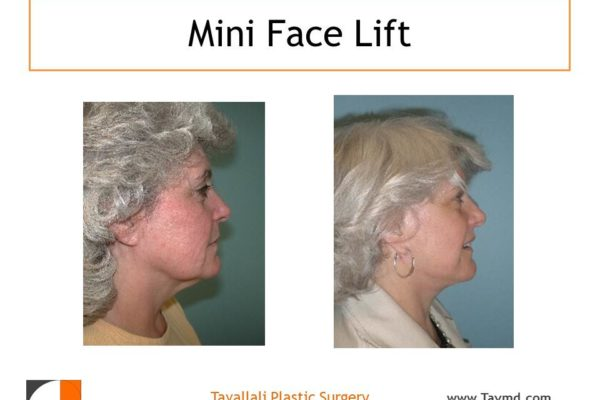 Woman with mini face lift surgery