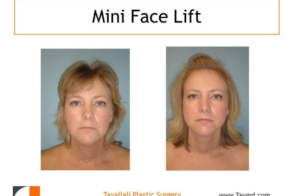 Young woman before after mini facelift