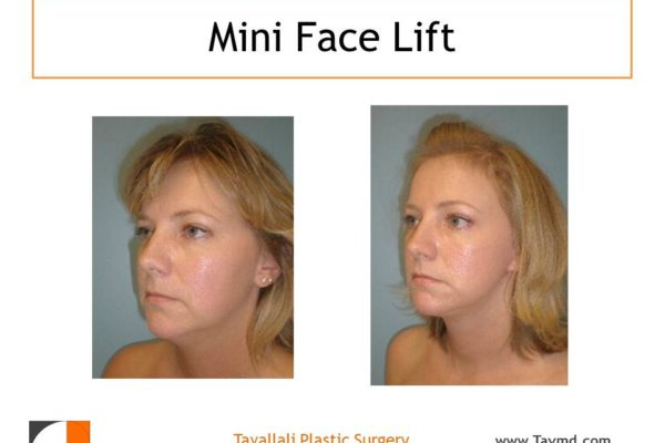 Young woman before after mini facelift oblique view