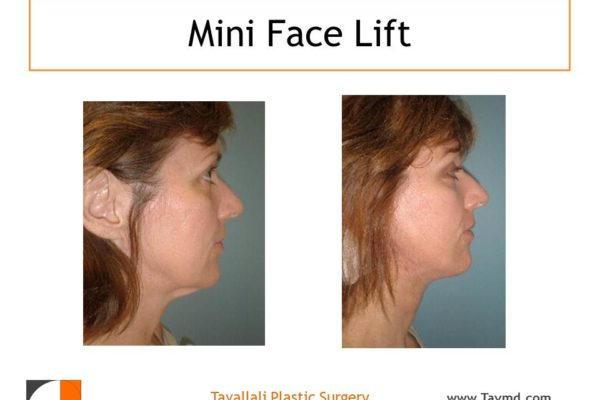 Young woman before after neck lift surgery