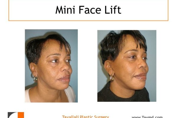 Mini facelift surgery results in black woman