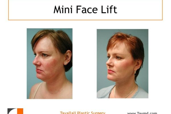 Lower face plastic surgery result