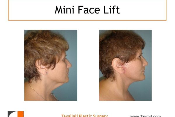 Neck & Jowl lift surgery in woman