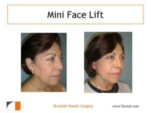 Woman with jowl surgery result