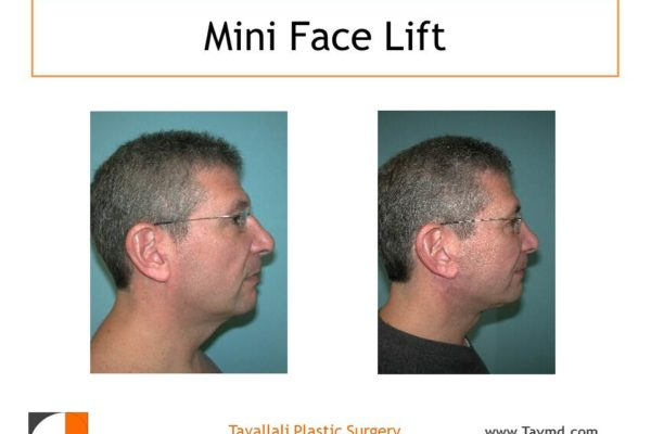Man with neck lift surgery before after