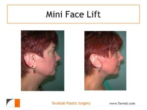 Neck lift surgery result in woman