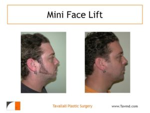 Neck lift surgery result in young man