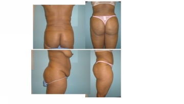 BBL Brazilian buttock lift multiple views