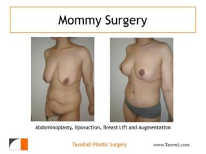 Mommy Surgery Tummy tuck abdominoplasty and Breast lift and enlargement surgery