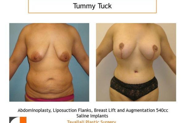Mommy Surgery Tummy tuck lipo flanks and Breast augmentation 540 cc saline implant