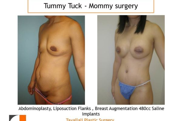 Mommy Surgery Tummy tuck and Breast augmentation 480 cc saline implant