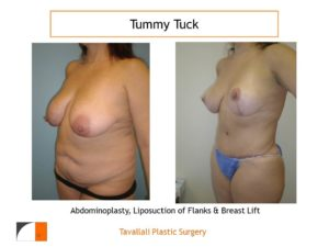 Mommy Surgery Tummy tuck and Breast lift before after