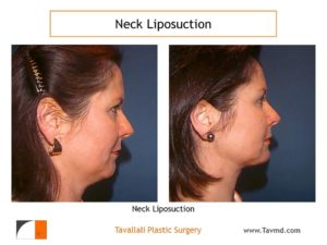 Side view before after neck liposuction Fairfax county VA
