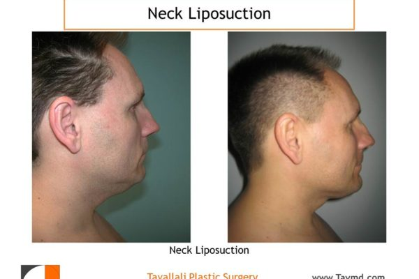 Man with before after neck liposuction surgery