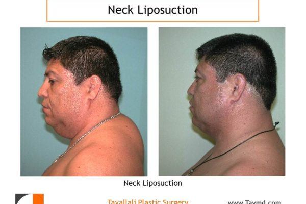 Neck liposuction fat removal before after Virginia in Man