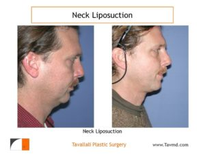 Profile view before after neck liposuction Fairfax county VA