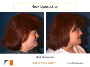 Neck liposuction fat removal before after Virginia